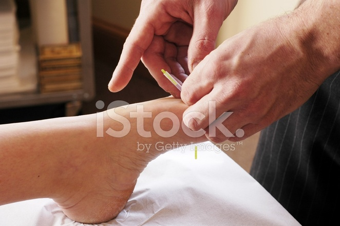 Acupuncture Foot 2 Stock Photos - FreeImages.com