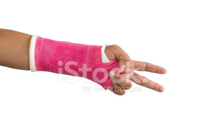 Splint, Gebrochene Knochen, Die Hand Stockfotos - FreeImages.com