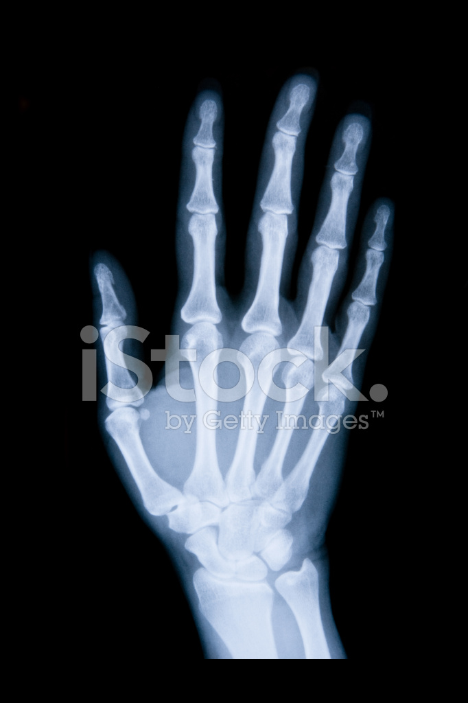 Right Hand X Ray Xxl Stock Photos - FreeImages.com