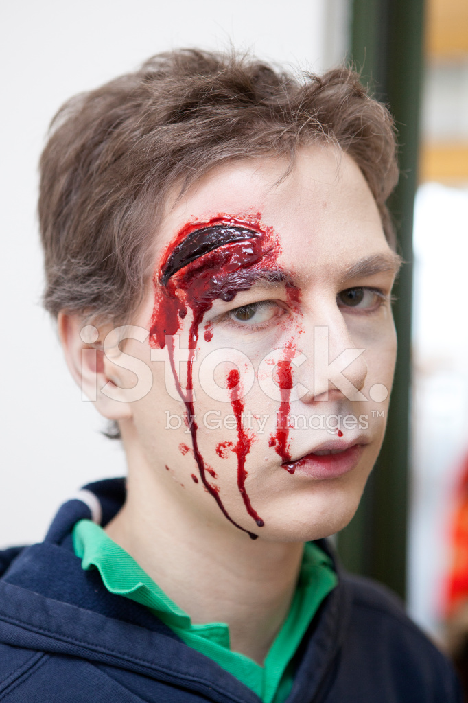 Young Man With Head Injury Laceration Stock Photos