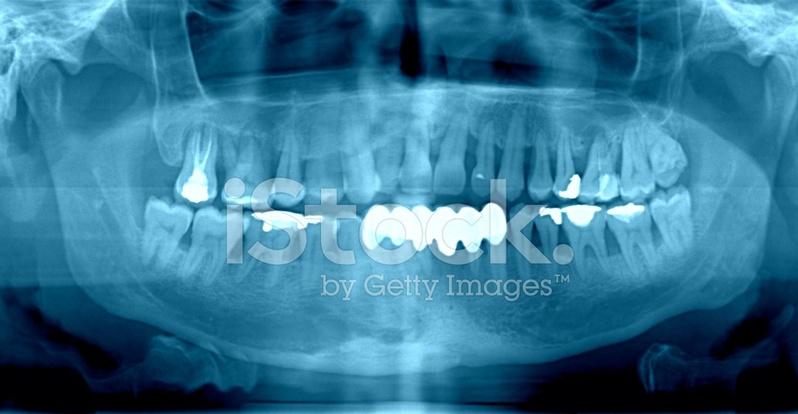 Radiografía Dental Fotografías de stock - FreeImages.com