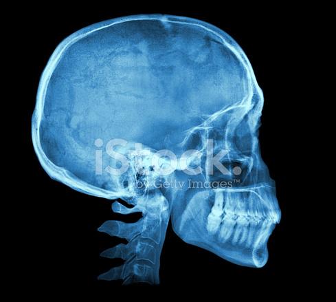 Imagen DE Rayos X DE Cráneo Humano Fotografías de stock - FreeImages.com