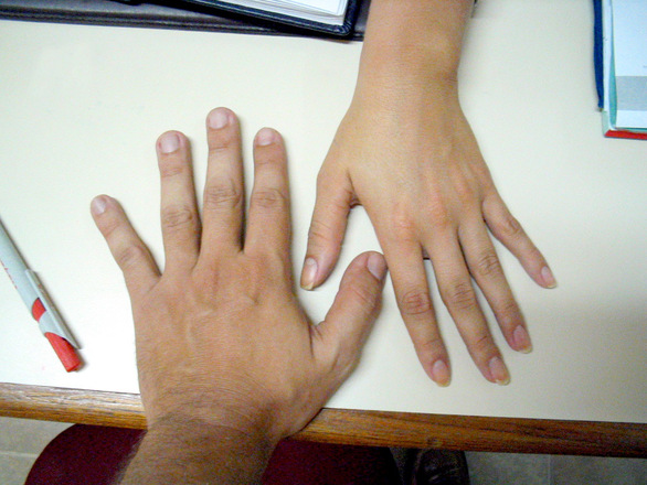 Free hands on table Stock Photo - FreeImages.com