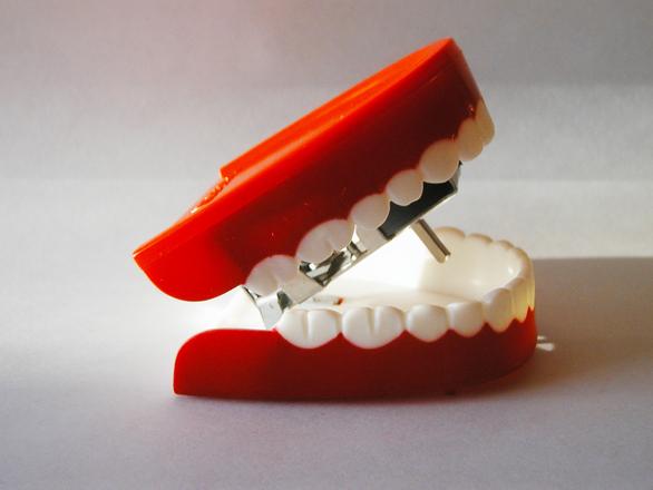 3D-tulostetut tekohampaat