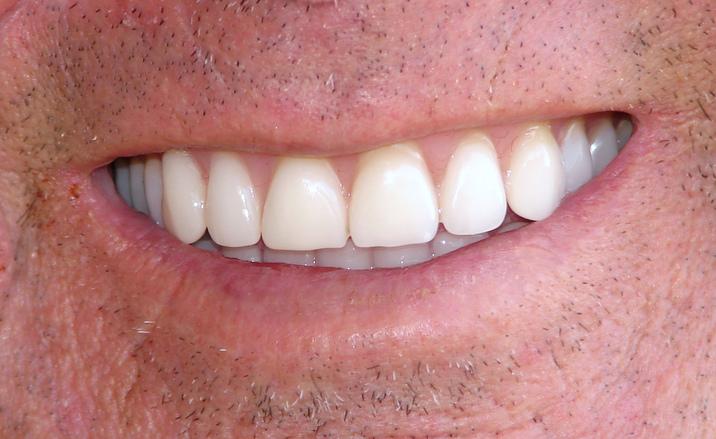 Valkeat hampaat