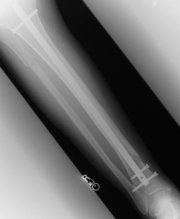 Broken Leg XraySeries 3