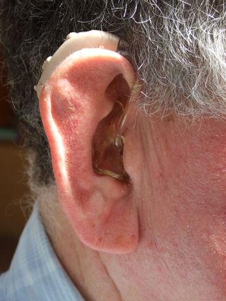 Kuulovammaisen apuväline