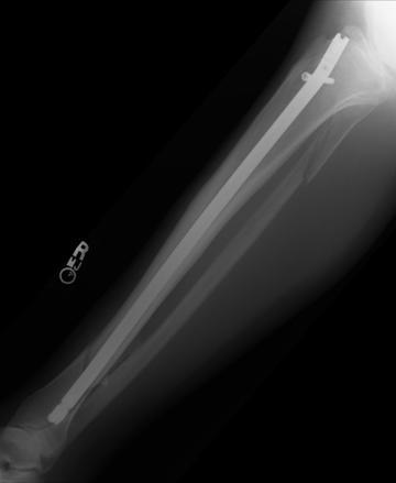 Broken Leg XraySeries 4