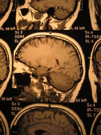 x-ray head