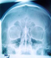 skull xray 1