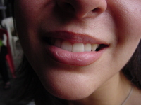 ada smile