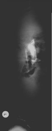 x-ray03