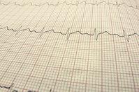 EKG line, hearthbeat