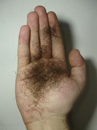 Hand hair