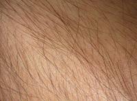 Hairy Skin Texture