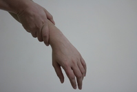Wrist Pain 2