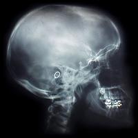 x-ray of my head