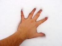 Hand Snow