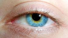[PL] Mad eye