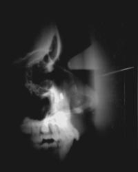 x-ray08
