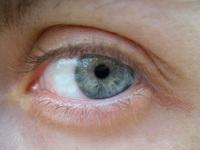 Alla's eye