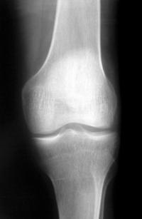 Knee X-Ray 1