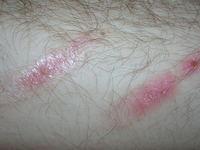 burned skin