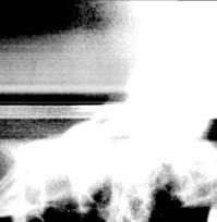 x-ray06