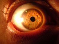 Chris' eye