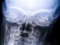 X-ray photo of skull