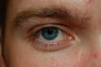 Matt's eye
