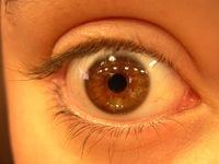 ojo derecho